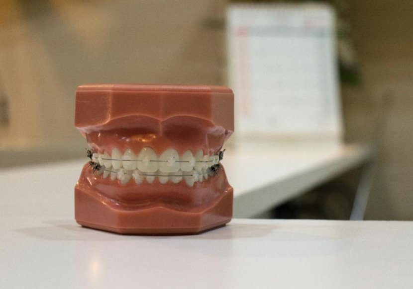 Choice of orthodontic braces