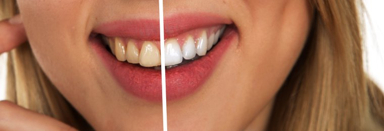 Effects of tooth whitening